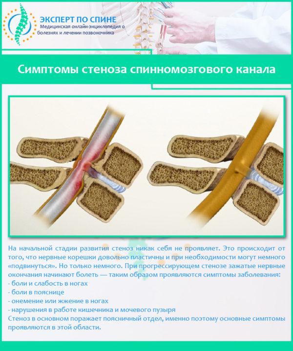 Симптомы стеноза спинномозгового канала
