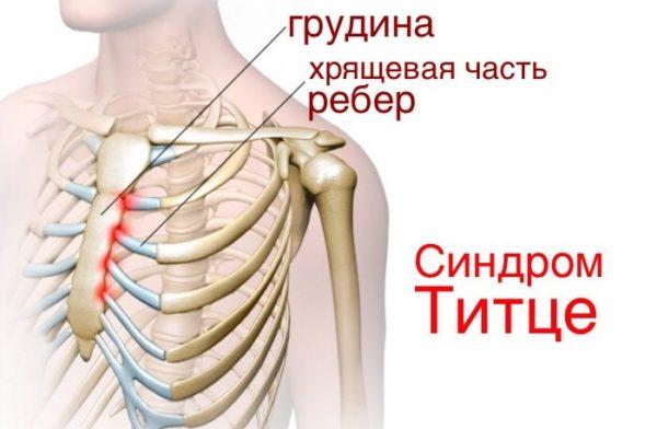Боли в спине отдает в грудь что это thumbnail