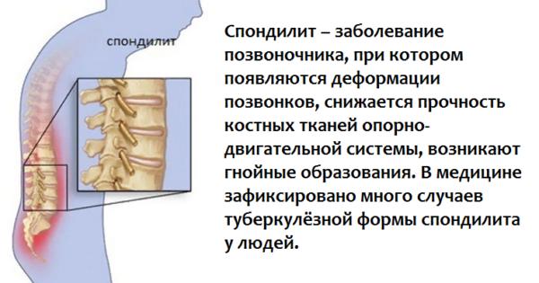 Спондилит