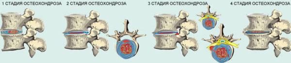 Стадии остеохондроза позвоночника