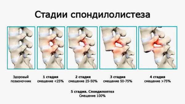 Стадии развития спондилолистеза