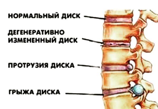 Стадии разрушения и деформации фиброзного кольца от нормы до грыжи