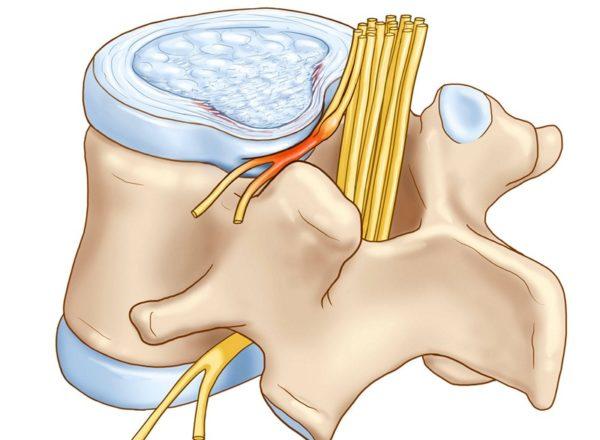 Схематичное изображение защемления нерва в спине