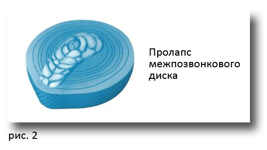 Схематичное изображение пролапса межпозвоночного диска