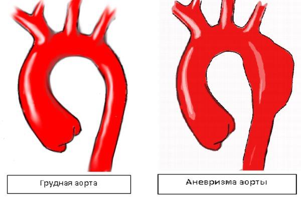 Схема аневризмы аорты