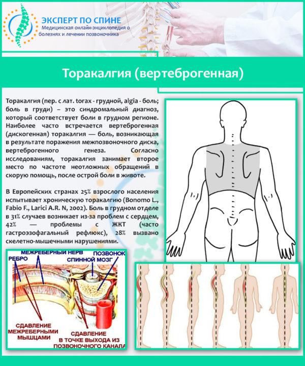 Торакалгия (вертеброгенная)