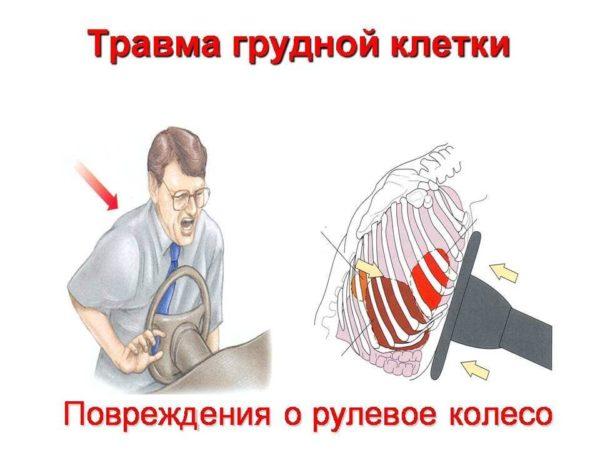 Травма грудной клетки при ДТП