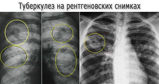 Туберкулез легких на рентгеновских снимках