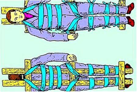 Фиксация человека при переломе позвоночника