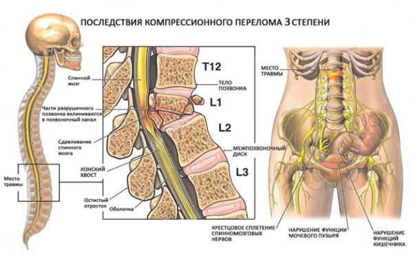 Что происходит в организме при переломе позвоночника 3 степени