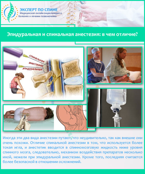 Эпидуральная и спинальная анестезия: в чем отличие?