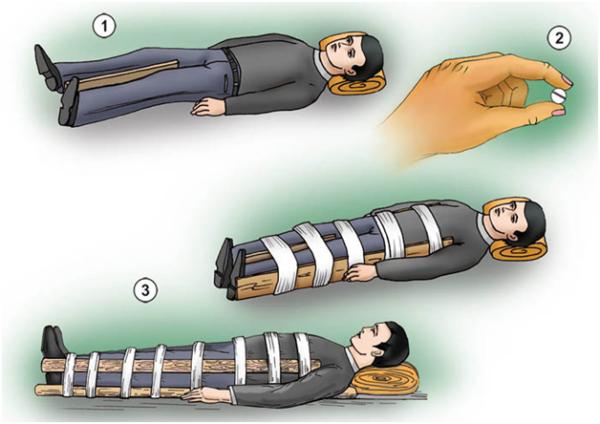 Этапы оказания первой помощи при переломе позвоночника