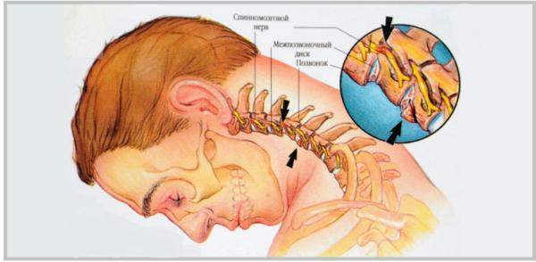 Прогрессирование кифоза грозит защемлением нервных окончаний и развитием других осложнений