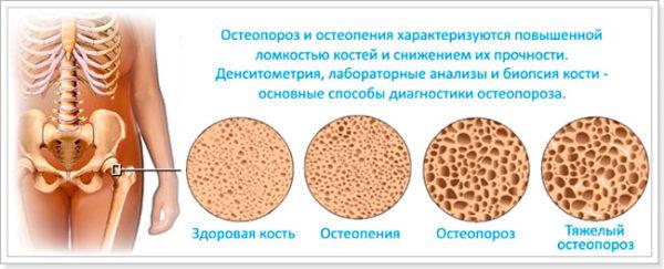 Остеопения и остеопороз: разница