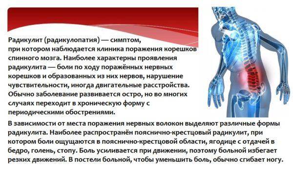 Радикулит (радикулопатия)