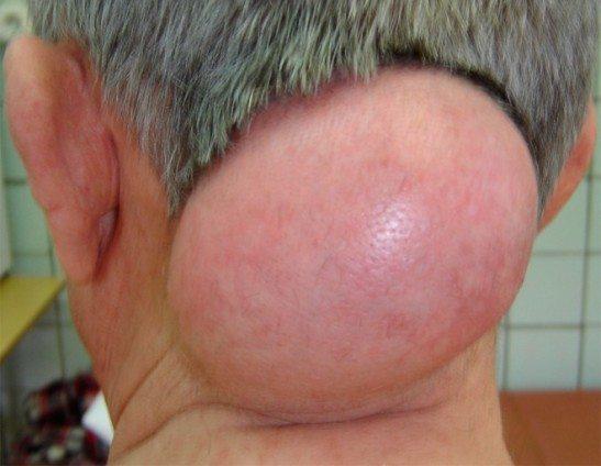 Иногда липомы на шее и спине стремительно увеличиваются в размерах, причиняя боль