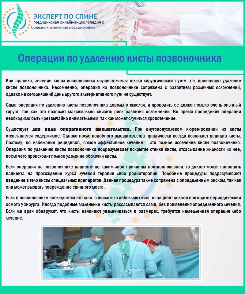 Виды операций для удаления кисты позвоночника