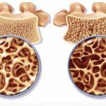 Лучшие препараты кальция при остеопорозе и полимодулятор