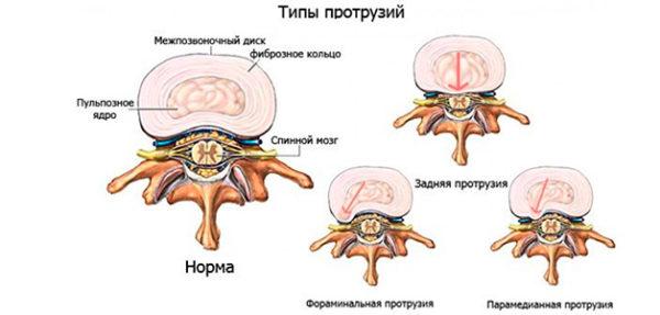Типы протрузий при остеохондрозе