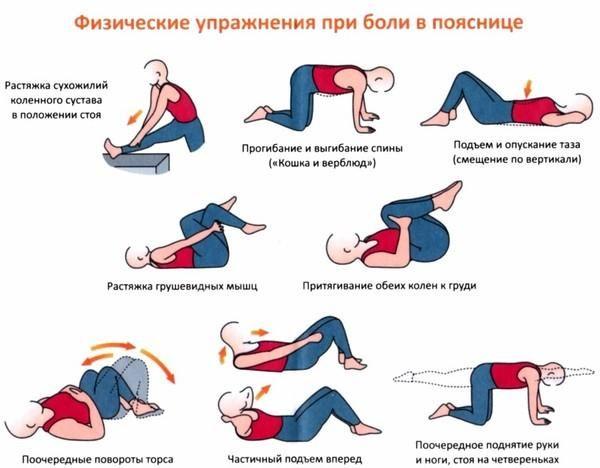 Комплекс упражнений при болях в пояснице