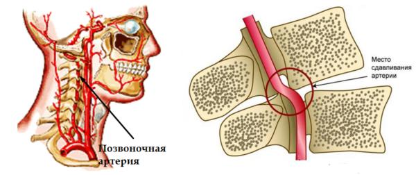 Препарат эффективен при синдроме позвоночной артерии - осложнении, часто сопровождающем остеохондроз