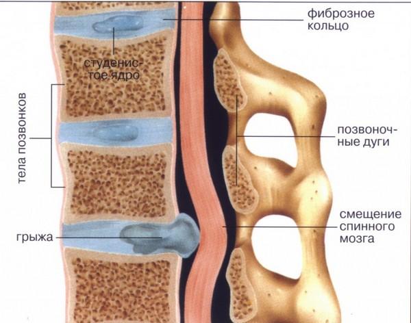 Неприятным осложнением остеохондроза при отсутствии лечения может стать грыжа межпозвоночного диска, избавиться от которой значительно сложнее, чем от ее «предшественника»