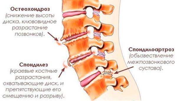 Отложение солей может являться одним из проявлений хронических патологий позвоночника - остеохондроза, спондилеза или спондилоартроза