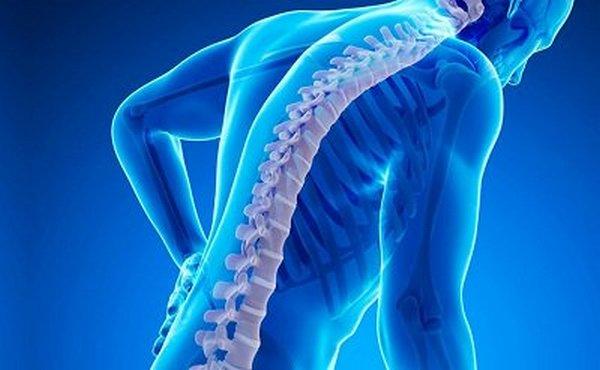 Остеохондроз может развиться как следствие других патологий позвоночного столба