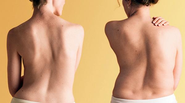 Остеохондроз может возникнуть из-за отсутствия размеренных физических нагрузок, а также вследствие искривления позвоночника