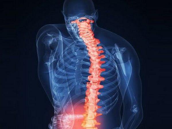 Хондроз и остеохондроз, вопреки распространенным мнениям, - разные заболевания
