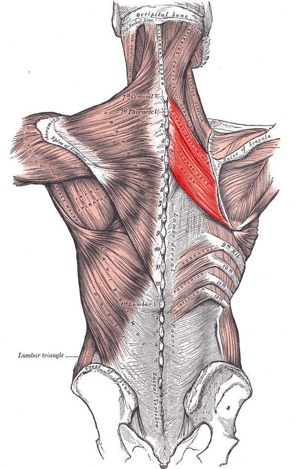 Чрезмерная нагрузка на ромбовидную мышцу может возникнуть при неправильном ношении грузов, резких движениях или занятиях спортом