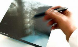 Последствие хронических заболеваний