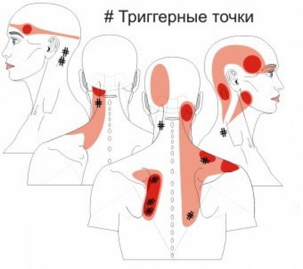 При миофасциальном болевом синдроме в мышцах возникают триггерные точки