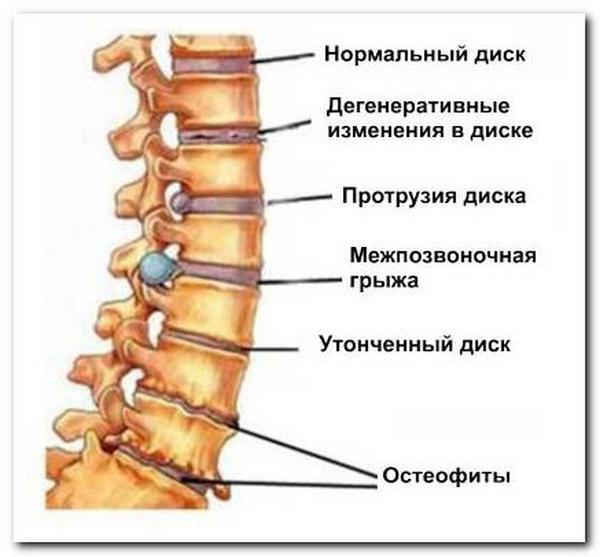 Выделяют несколько стадий остеохондроза
