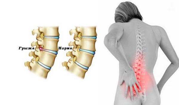 Грыжу можно определить по боли и онемению в области поражения