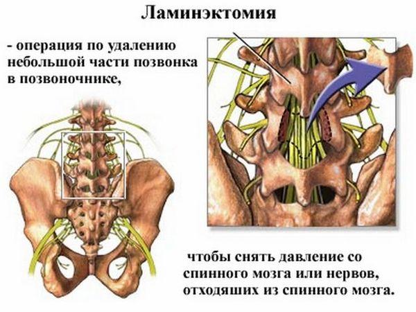 Ламинэктомия – один из видов операции на позвоночном столбе