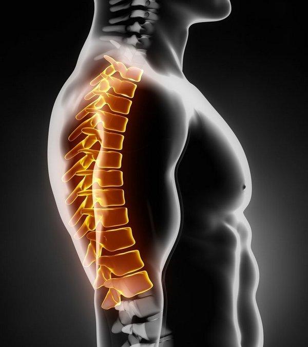 Если человек не следит за осанкой – велик шанс, что у него разовьется остеохондроз