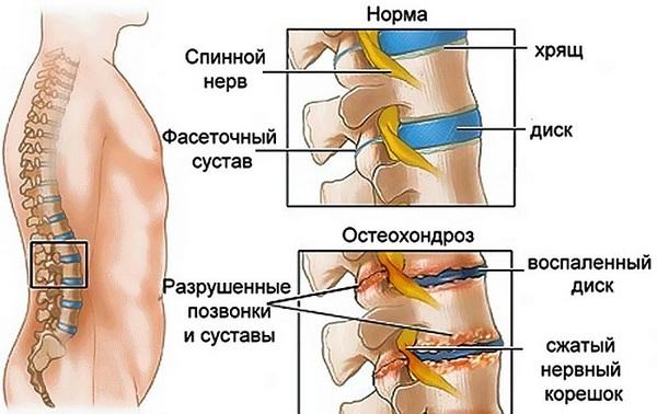 Можно выделить несколько стадий развития такой болезни, которые различаются выраженностью симптомов