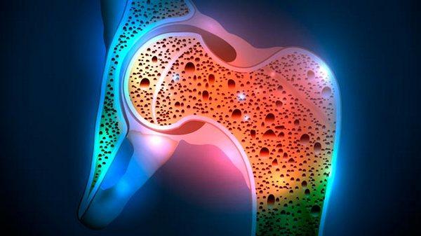 Развиться остеопороз в зрелом возрасте может из-за гормонального сбоя, вызванного нехваткой определенных веществ