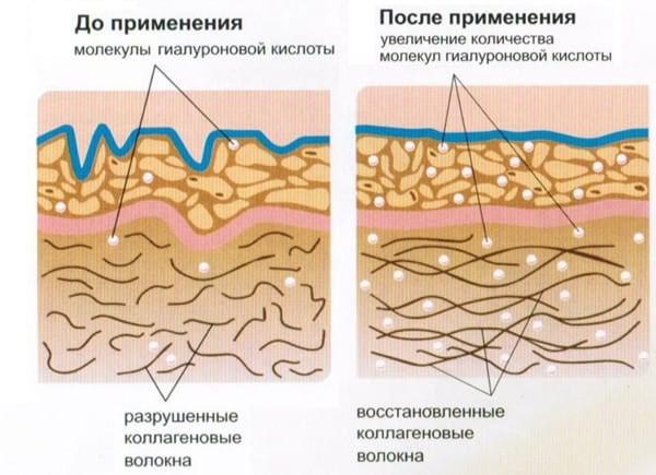 Действующие вещества средства быстро и хорошо усваиваются в организме человека, оказывая положительный эффект на состояние хрящей и сосудов, кровообращение
