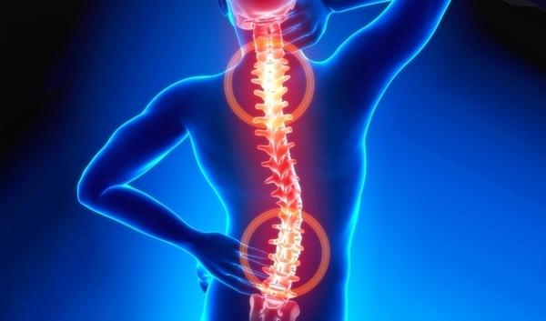 Чаще всего ослабление ромбовидной мышцы происходит с обеих сторон туловища
