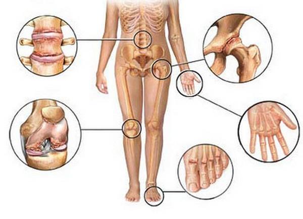 Остеоартроз часто становится причиной болей в спине