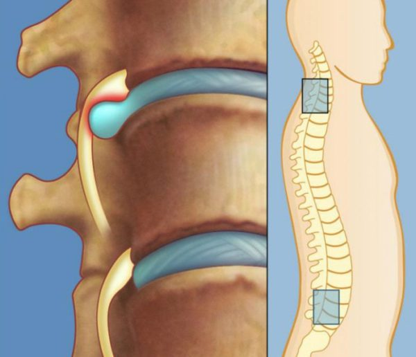 Разрушение межпозвоночного диска приводит к образованию грыжи, что проявляется болью в спине