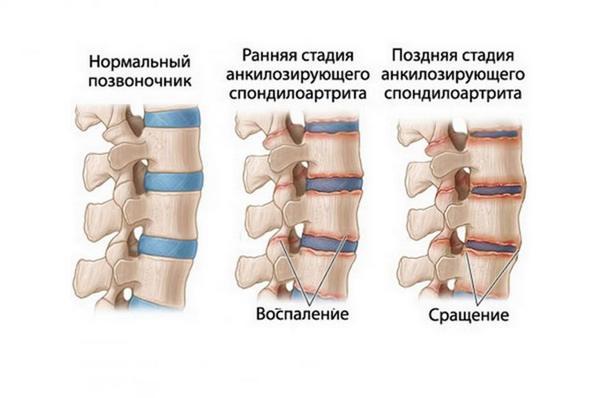 Болезнь Бехтерева, к сожалению, не лечится, однако можно приостановить ее развитие