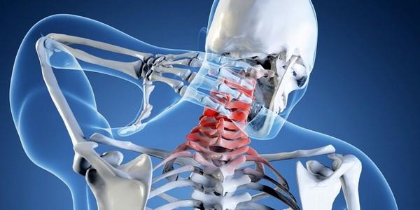 При отсутствии лечения могут развиться и межпозвоночная грыжа