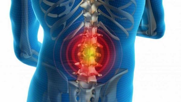 Симптомы у межпозвоночной грыжи достаточно яркие, но это в случае, если пережаты нервы