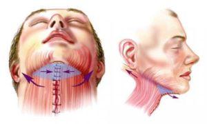 Последствия хирургических вмешательств
