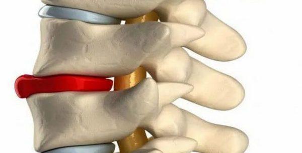 Жировая дегенерация позвонков может развиться из-за нарушенного питания клеток межпозвоночного диска