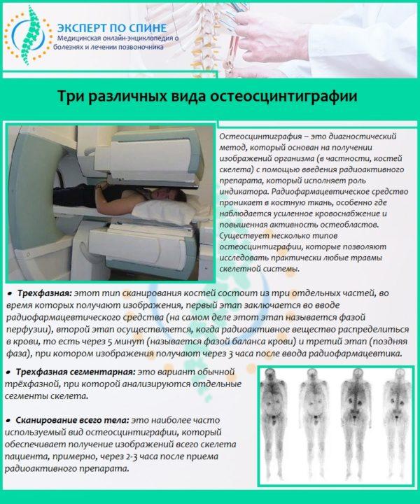 Три различных вида остеосцинтиграфии