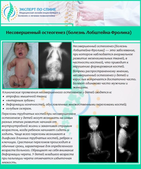 Несовершенный остеогенез (болезнь Лобштейна-Фролика)